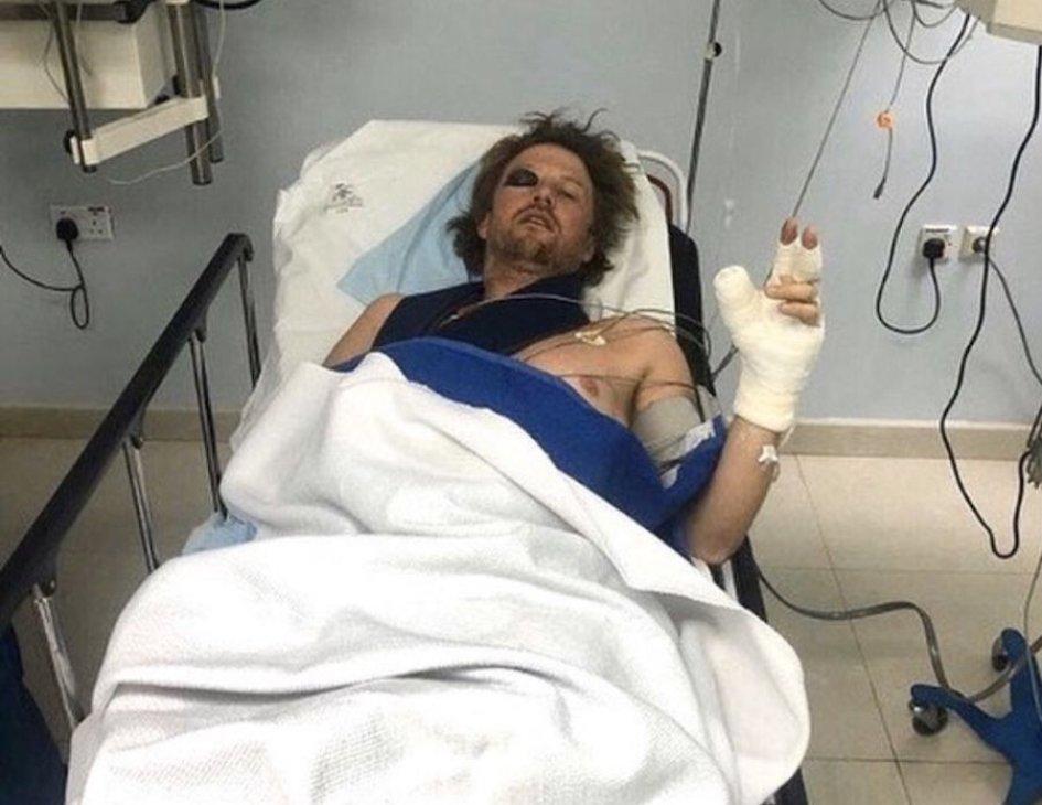 Dakar: VIDEO - Brutto incidente per Van Beveren, clavicola rotta in 3 punti
