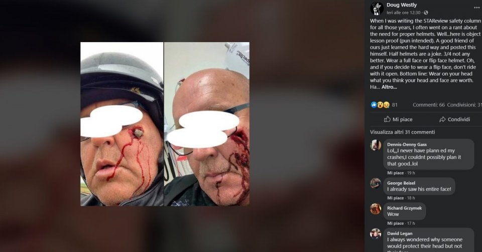 Moto - News: Jet or full-face helmet? Here's what happened to an American motorcyclist...