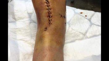 Loris Baz: now my foot seems my foot