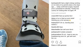 MotoGP: Kevin Schwantz under the knife: broken foot