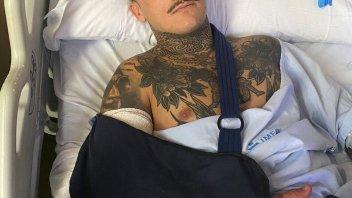 Moto2: Sindrome compartimentale: Aron Canet operato al braccio destro