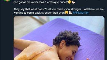 """SBK: Ana Carrasco mostra le sue ferite: """"Quello che non ti uccide, ti rende più forte"""""""