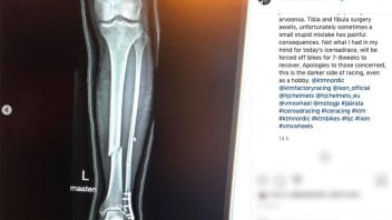 MotoGP: Kallio puts KTM in trouble: tibia and fibula fracture, out for two months